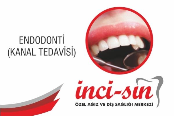 KANAL TEDAVİSİ